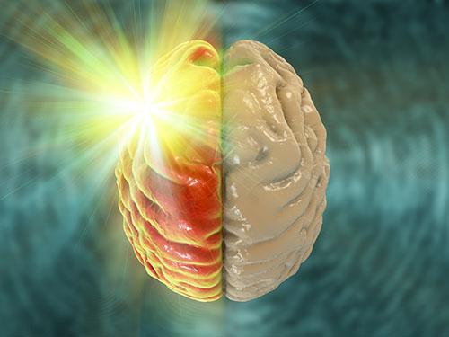 Migraine visualisation
